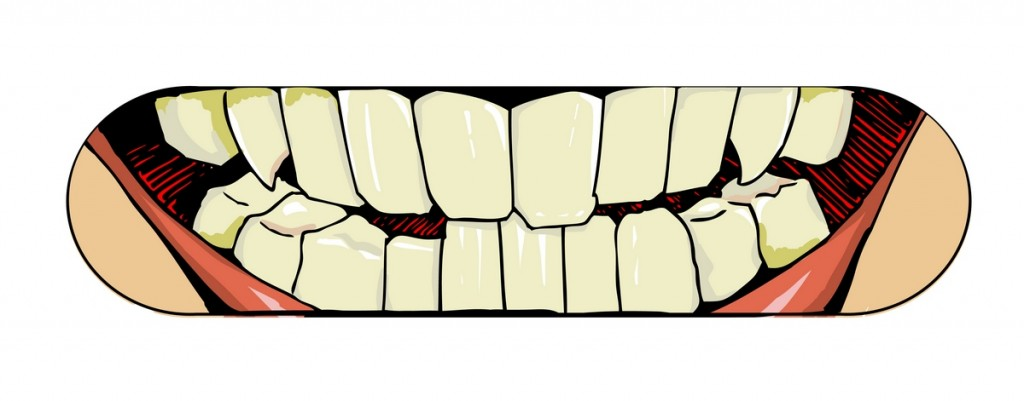 teeth, design for board